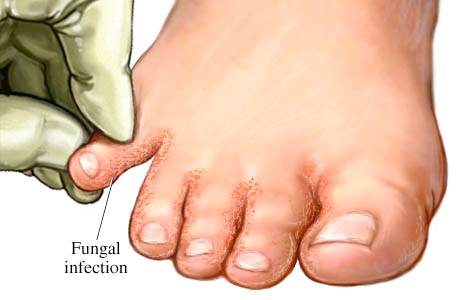 Athlete's foot | Sutherland Podiatry Centre