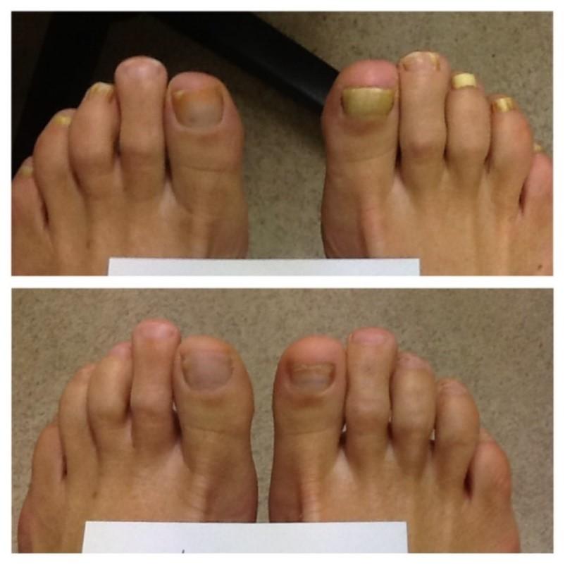 Fungal toenail treatment | Sutherland Podiatry Centre