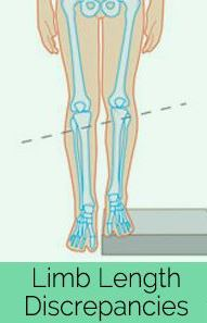 Is one of your legs longer than the other | Sutherland Podiatry Centre