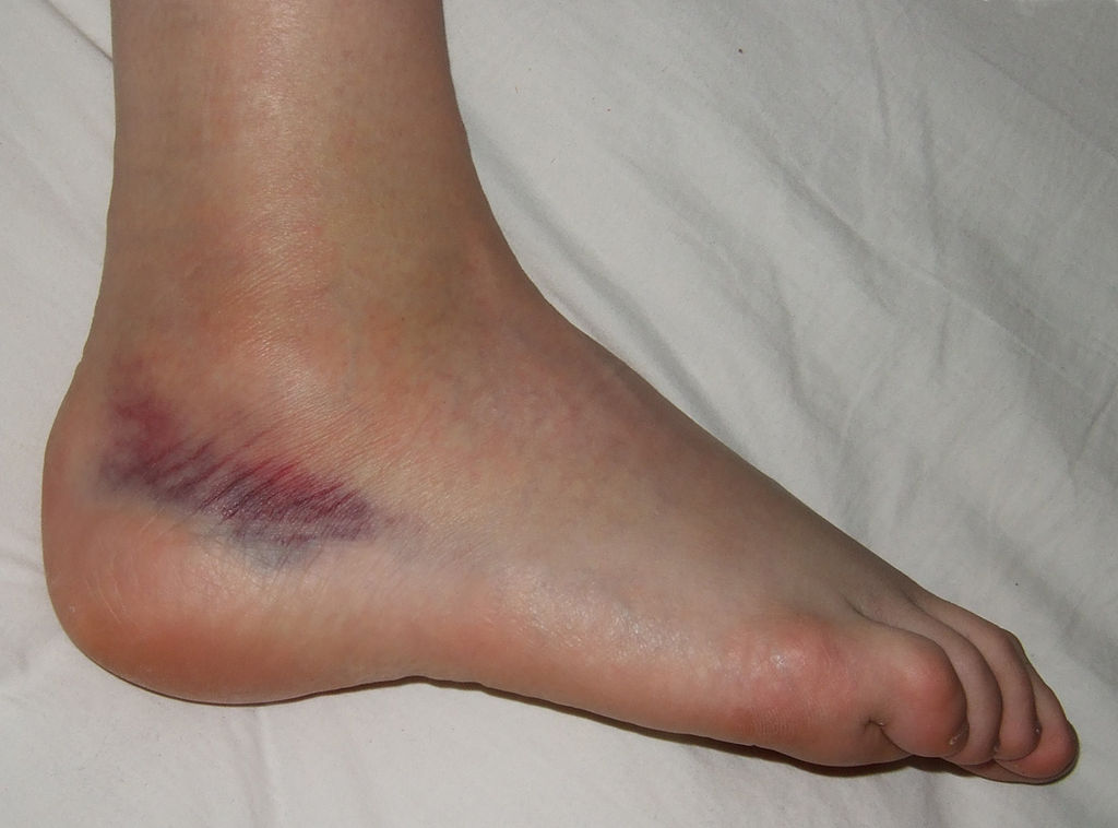 sprained ankle | Sutherland Podiatry Centre