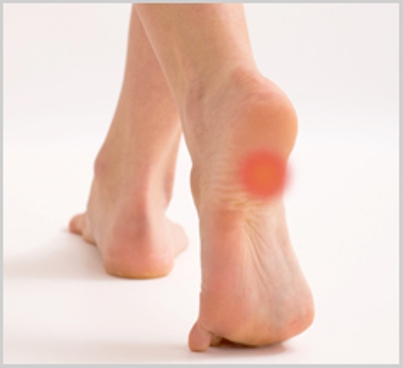 Top tips for heel pain | Sutherland Podiatry Centre
