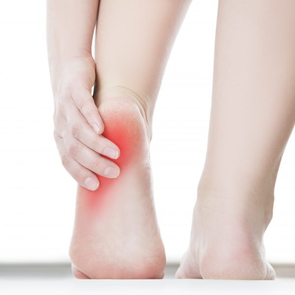 excruciating heel pain | Sutherland Podiatry Centre