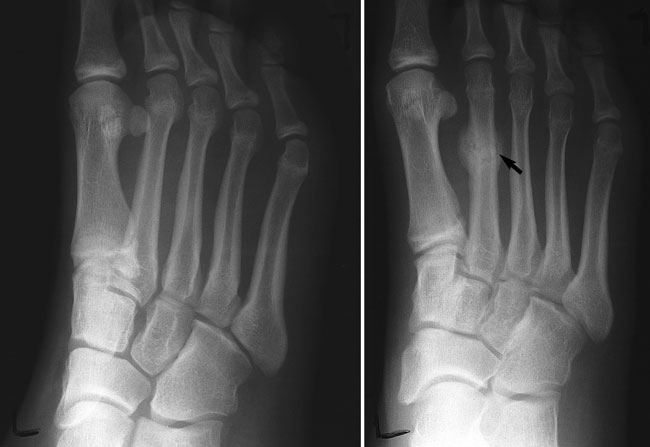 Stress fractures in the feet | Sutherland Podiatry Centre