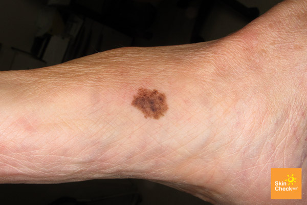 Did You Know You Can Get Malignant Melanoma On Your Feet Sutherland Podiatry