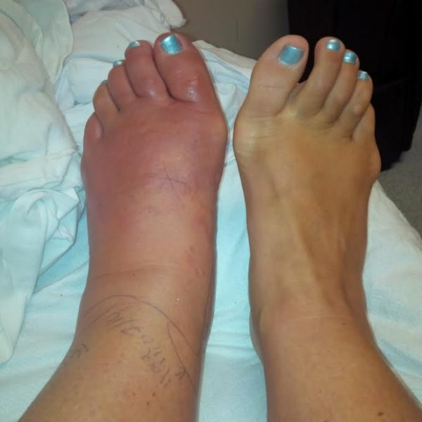How do you know if your foot is infected   Sutherland Podiatry Centre