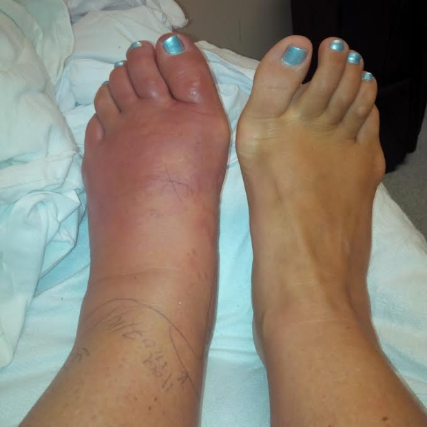 How do you know if your foot is infected | Sutherland Podiatry Centre