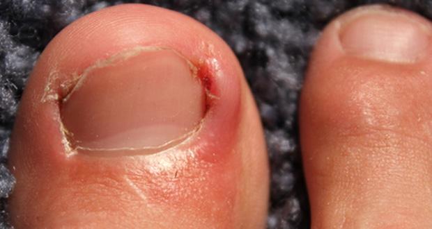 Ingrown toenail mistakes | Sutherland Podiatry Centre