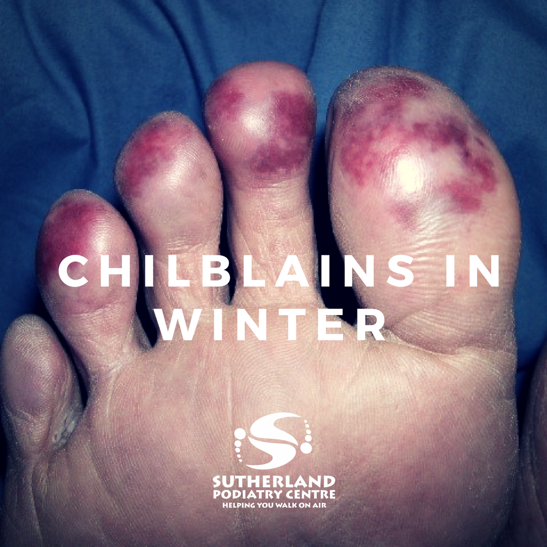 Chilblains in Winter | Sutherland Podiatry Centre