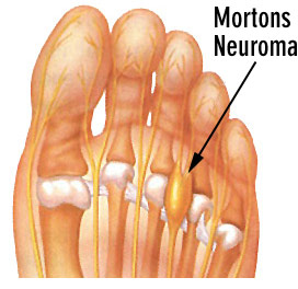 Mortons Neuroma ball of foot pain | Sutherland Podiatry Centre